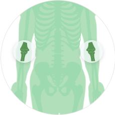МРТ суставов Локтевой сустав с одной стороны